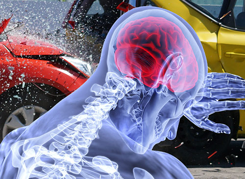 Car Accident help from Advanced Spinal Care